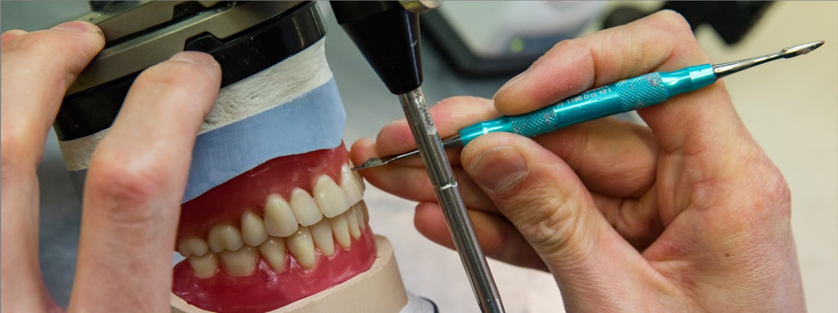 Diseraad Praktijk voor Kunstgebitten - vergoedingen kunstgebit op implantaten