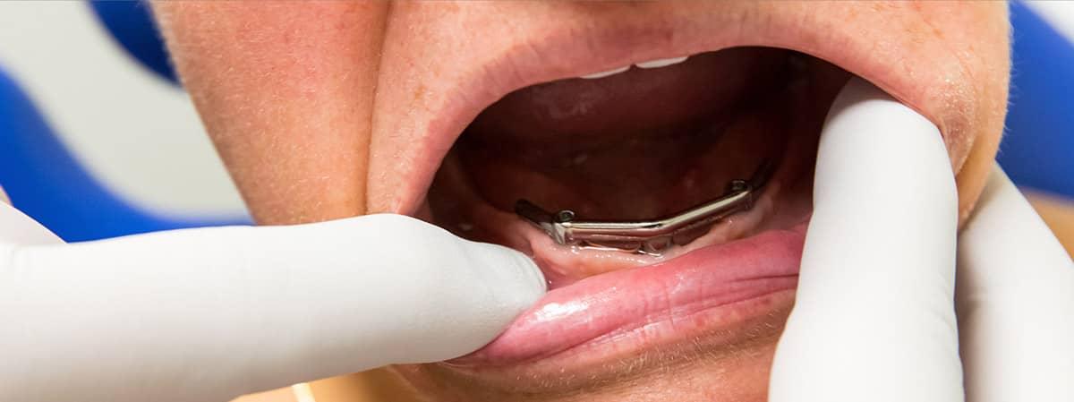 Nieuw kunstgebit op implantaten - Diseraad Praktijk voor Kunstgebitten